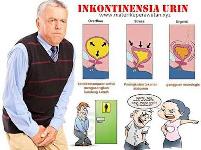 Catatan Perawat: Asuhan Keperawatan dan Apa itu Inkontinensia Urine ?
