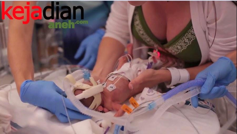 Bukti Kebesaran Tuhan yang Selamatkan Bayi Prematur Ward Miles