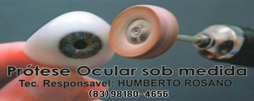 PRÓTESE OCULAR SOB MEDIDA - TEC. HUMBERTO ROSSANO - FONE (83) 98180-4656 - CASSERENGUE - PB