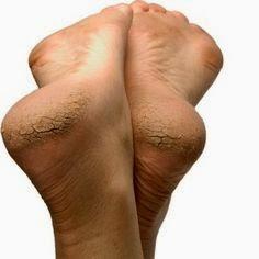 ส้นเท้าแตก