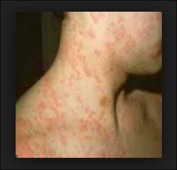 severe-allergy-symptoms