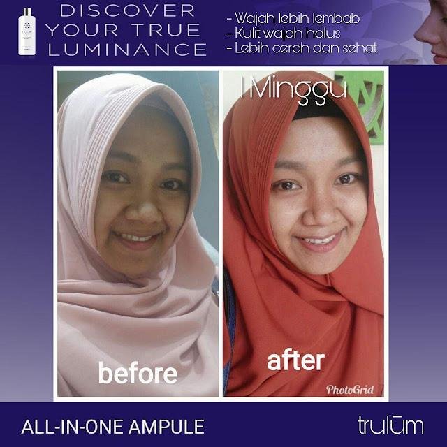 Jual Serum Penghilang Jerawat Trulum Skincare Gayam Sari Kota Semarang
