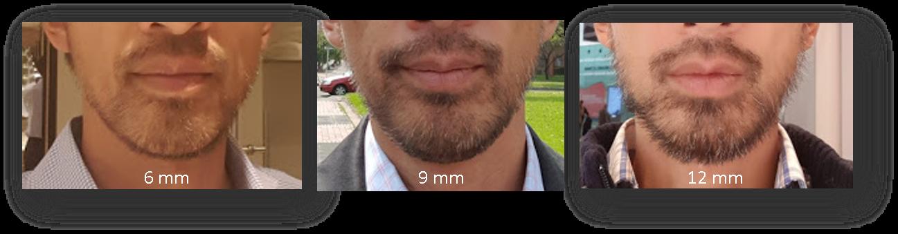 6mm and 9mm Beard