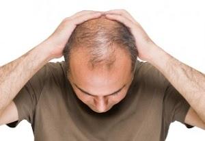 10 Merk Obat Rambut Botak yang Bagus