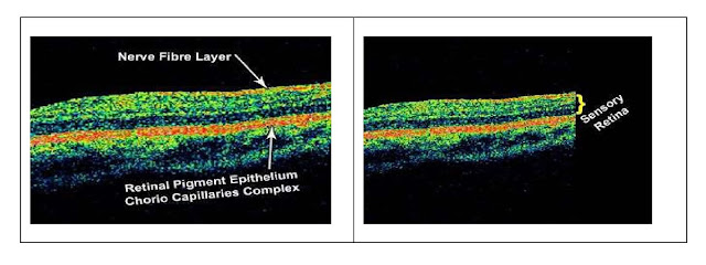 Picture showing layers of retina