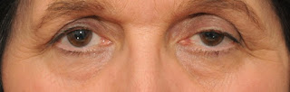Göz Kapağı Düşüklüğü Belirtileri ve Tedavisi