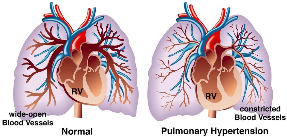 Bezdech senny i zastosowanie CPAP przy nadciśnieniu płucnym (PAH)