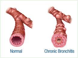 Cordyceps Plus Capsule Obat Bronkitis Kronis