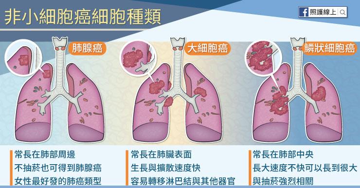 非小細胞癌細胞種類