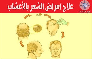 علاج امراض الشعر بالأعشاب