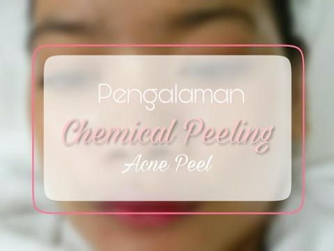 Pengalaman Acne Peel/Chemical Peeling di Natasha Skincare