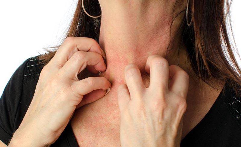 health, skin, eczema rash