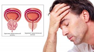 Prostataadenom und Vitafon