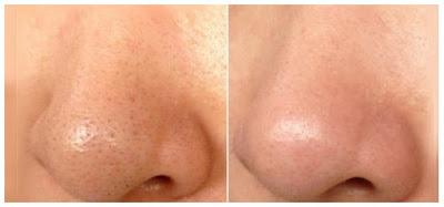 Éliminer les points noirs sur le nez en 5 étapes naturellement et définitivement