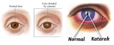pengobatan tradisional mata katarak
