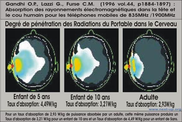 Degre de pénétration des Radiations du portable dans le cerveau