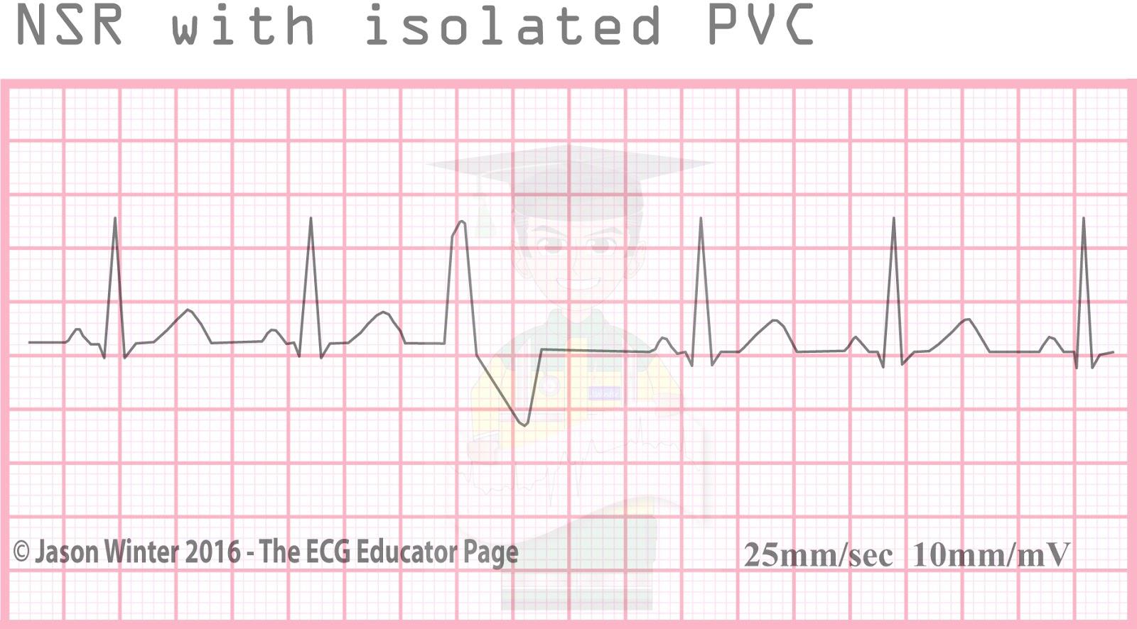 ECG Educator Blog : Ventricular Ectopics