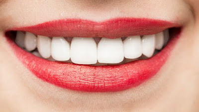 Como blanquear  tus dientes