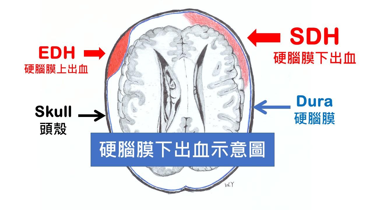 硬 下 慢性 血腫 膜