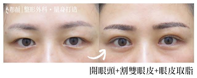 彤顏診所-割雙眼皮-開眼頭-雙眼皮手術推薦-雙眼皮推薦-中壢整形外科-桃園整形外科-眼神放大術-內眥皮-內雙-眼皮取脂修皮