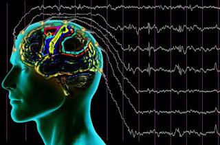 EEG di ICU: Kunci untuk Mendeteksi Kesadaran yang Samar-Samar