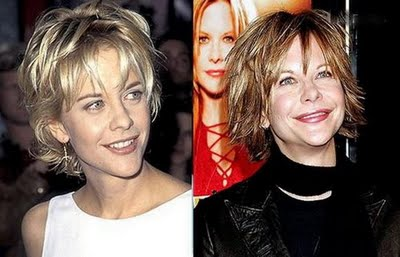 Hollywood Celebrities With Plastic Cosmetic Surgery Before