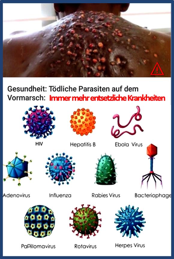 Gefährliche Krankheiten und multiresistente Keime werden in die EU eingeschleppt