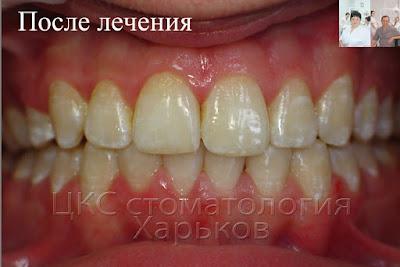 Зубы после лечения брекетами с удалением