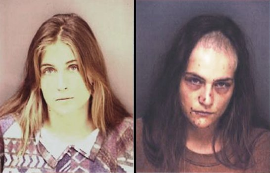crystal meth addicts before and after