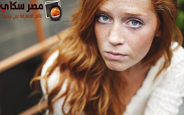 ماهى العلاقة بين الشعر الأحمر ولون الجلد Red hair and skin color