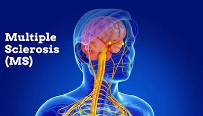 Perbaiki Gejala Multiple Sclerosis dengan Makan Sayur dan Buah