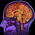 Πηγαίνοντας στο διάστημα κυριολεκτικά αλλάζει ο εγκέφαλός σας