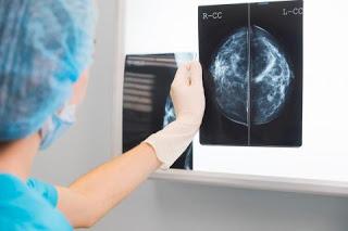 FDA pone cambios en las pautas de mamografía por primera vez
