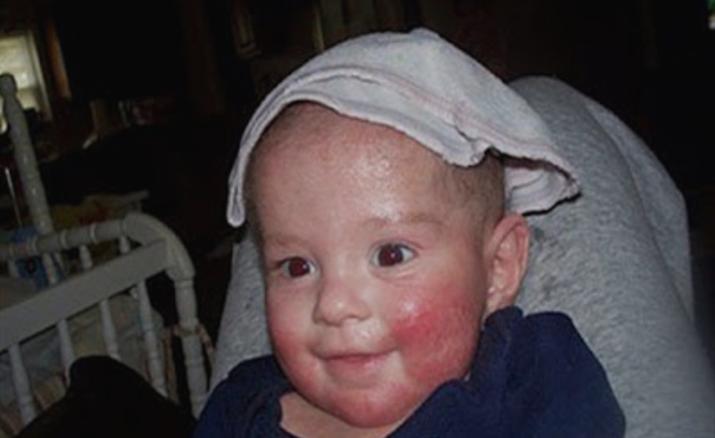 لاحظت أن ضحكة طفلتها غريبة وعندما شاهدها الطبيب أصيب بالذعر