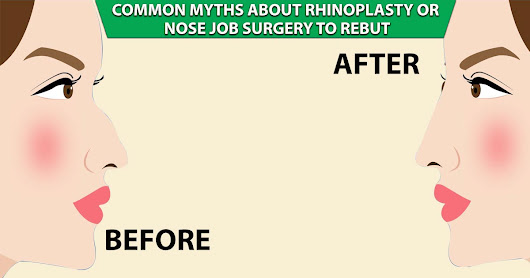 Common Myths about Rhinoplasty or Nose Job Surgery to Rebut
