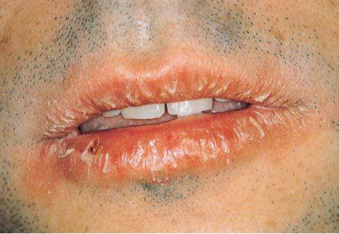 Lesions affecting Lips- Oral Medicine - 294.3KB