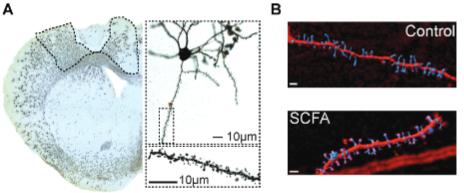 図:短鎖脂肪酸と神経シナプス