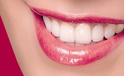 Tìm hiểu về công nghệ tẩy trắng răng bằng đèn laser 1