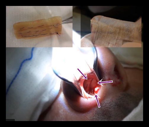 Repair of nasal septum perforation with rib cartilage - Reapiring of septum peforation - Closure of nasal septum perforation with rib cartilage - Nasal septum perforation rapairing surgery - Treatment of large septal perforation - Nasal septum perforation repair in Istanbul