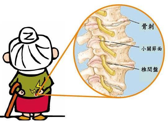 鄭醫師整骨治療保健中心: 長骨刺?不用怕!(Osteophytes)