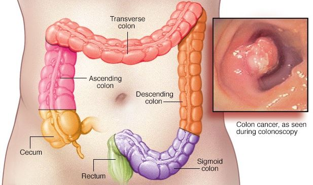 5 Unusual Signs Of Colon Cancer Most Folks Accidentally. Animal Australian Signs. Yellowing Signs. House Rules Signs. Blended Family Signs. Couple Match Signs Of Stroke. December 28th Signs. Leo Tumblr Signs. Saya Signs