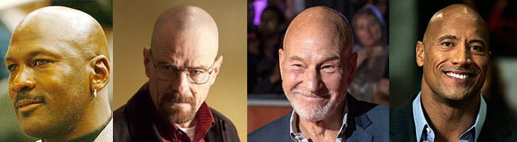Famous Bald People And Celebrities With Hair Loss