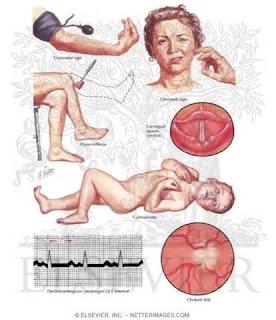 gejala-tetanus