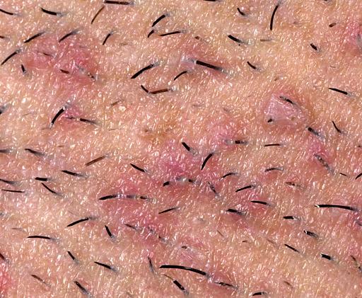 Differnce Between Herpes And Ingrown Hair? 3