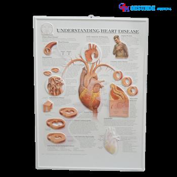 Poster Penyakit Jantung 3d Gambar Penyakit Jantung 3 Dimensi