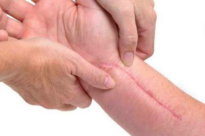 Obat Keloid Ampuh, Cara Menghilangkan Keloid Di Kulit Tubuh Sampai Tuntas