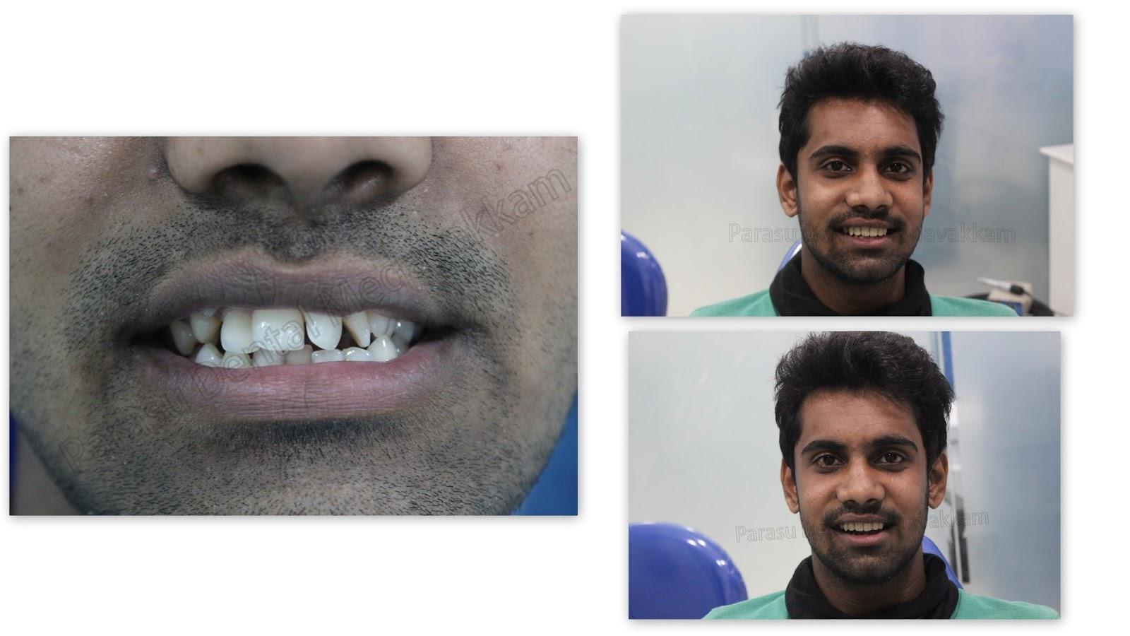 Nobel Biocare - Chennai: Smile Design with nobel biocare implants ...