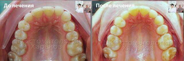 Форма верхнего зубного ряда до и после лечения ортодонтического лечения