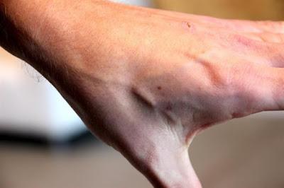 En las personas el chip se inserta en la mano, entre el índice y el pulgar, es implantado por un tatuador. Foto: EFE