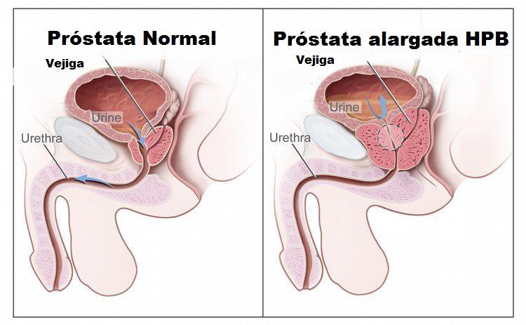 hiperplasia benigna da prostata e impotencia
